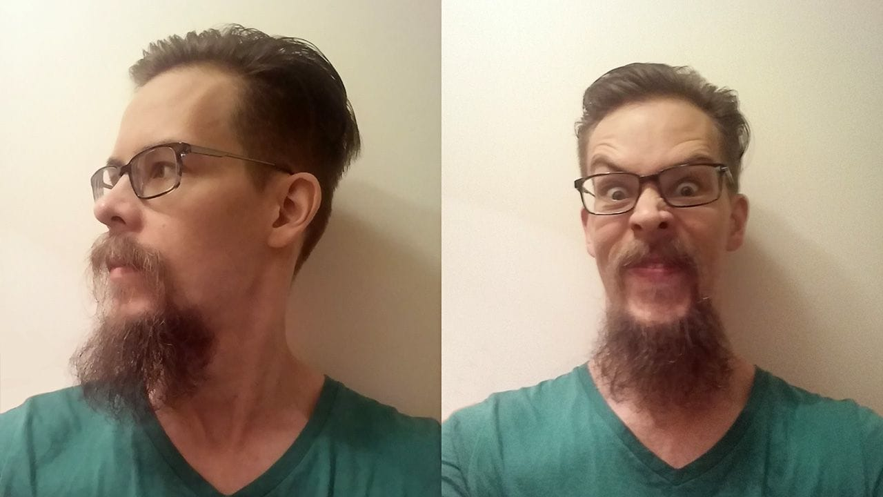 The beard growth after 46 weeks.